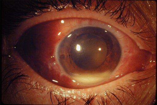 Упражнения для глаз улучшения зрения астигматизм