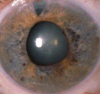 Диагностика и методы лечения катаракты
