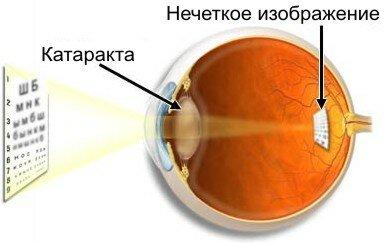 katarakta_vision.jpg